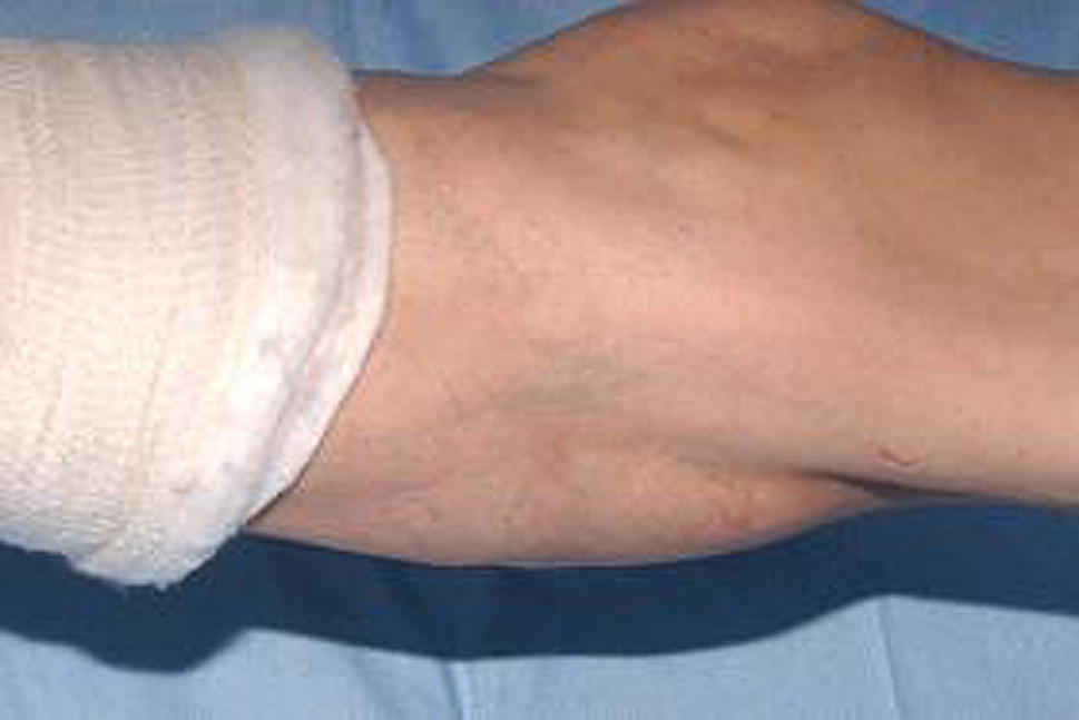 Rapid Expansion of Popliteal Artery Aneurysm after Lower ...