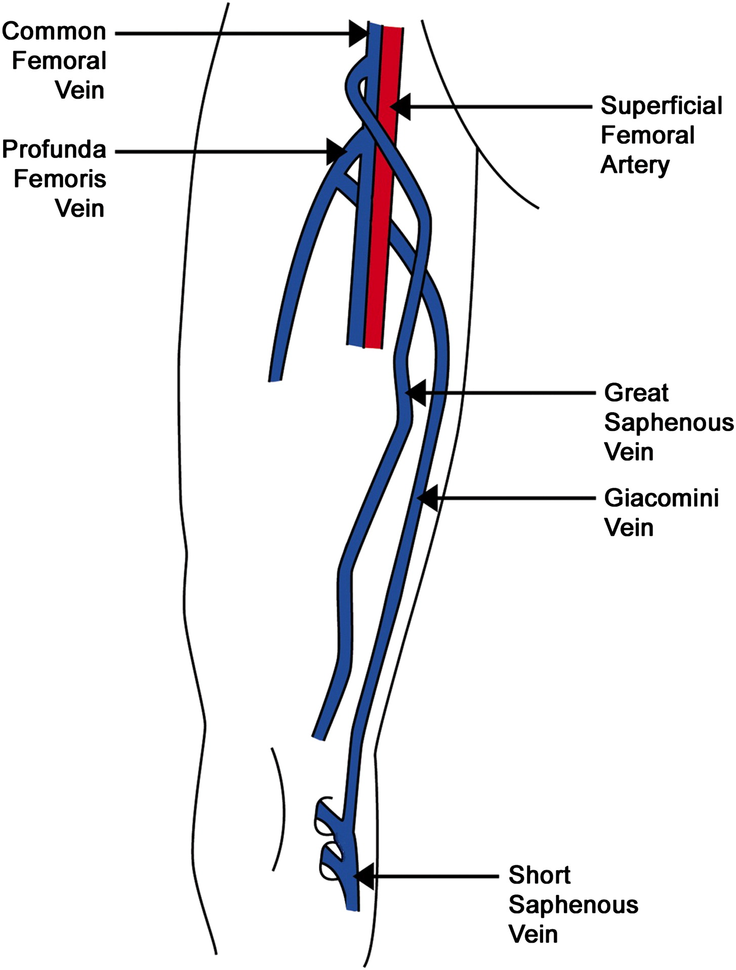 Case Report A Rare Orientation Of Femoral Artery And Vein Ejves