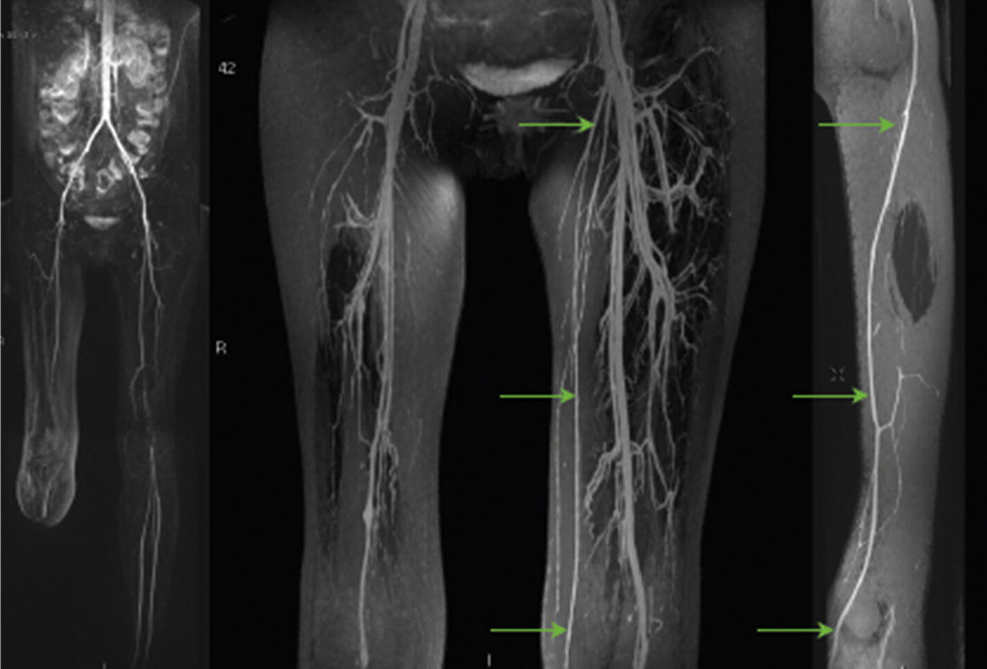 Combined Assessment of Arterial and Venous Anatomy in Lower Limb ...